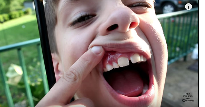 Pull Your Tooth With A Bow & Arrow